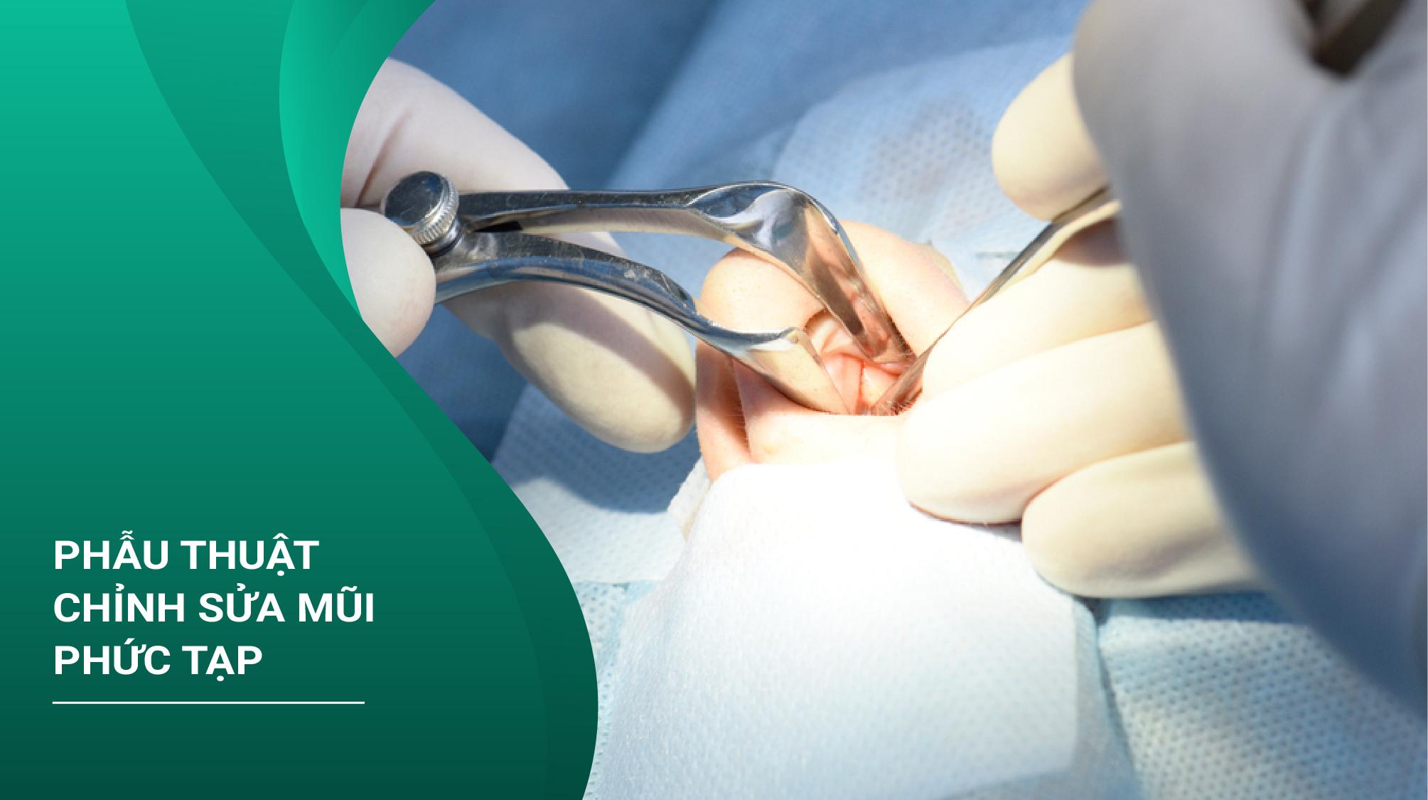 Phẫu Thuật Chỉnh Sửa Mũi Phức Tạp