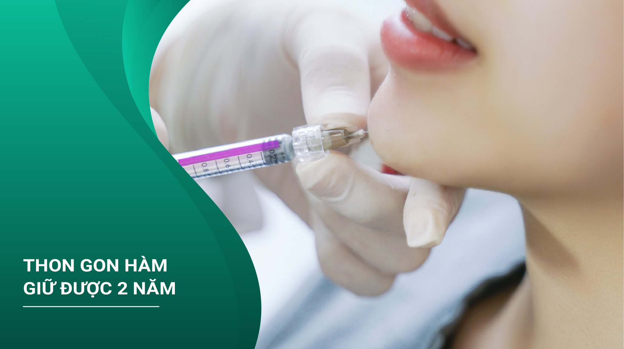 Tiêm Botox Thon Gọn Hàm Giữ Được 2 Năm