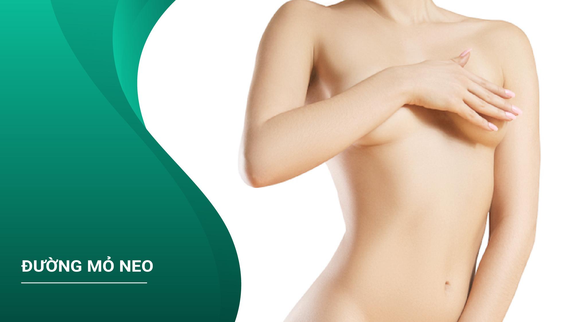 Nâng Ngực Đường Mỏ Neo