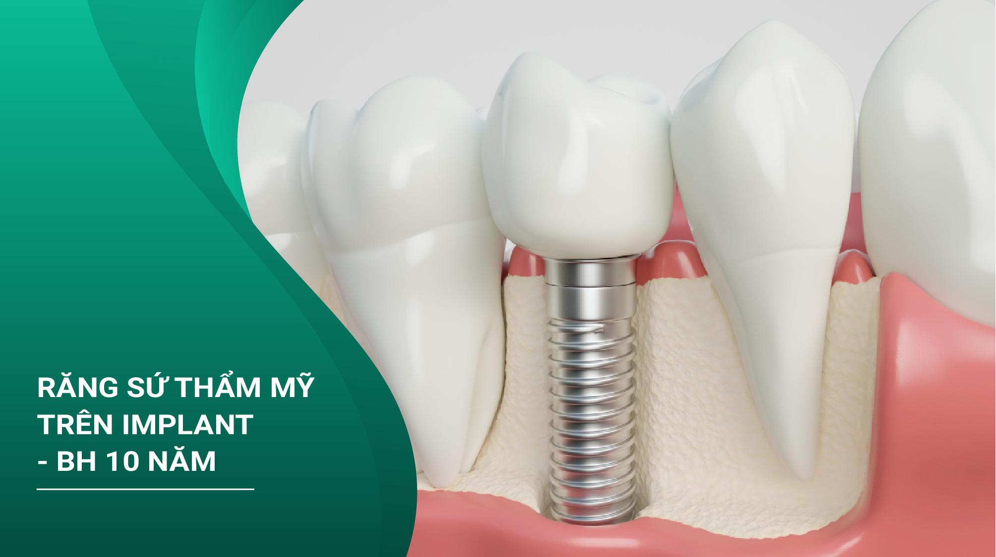 Phục Hình Răng Sứ Thẩm Mỹ Trên Implant - Bảo Hành 10