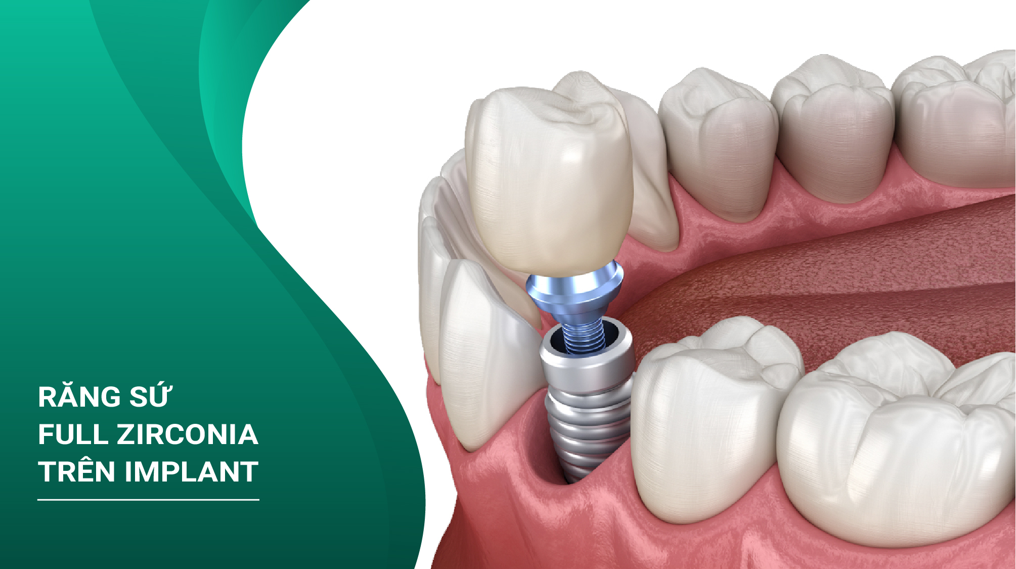 Răng Sứ Full Zirconia Trên Implant