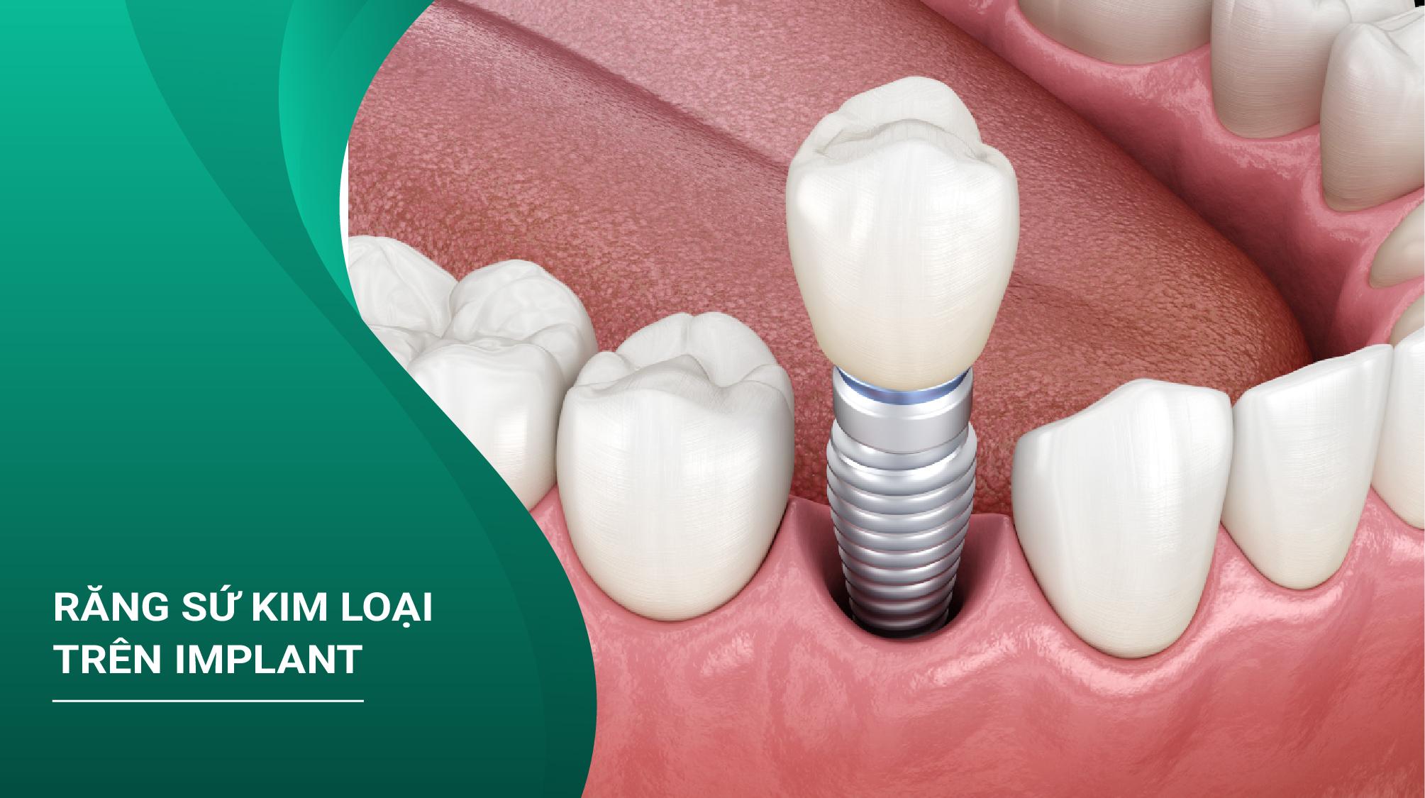 Răng Sứ Kim Loại Trên Implant