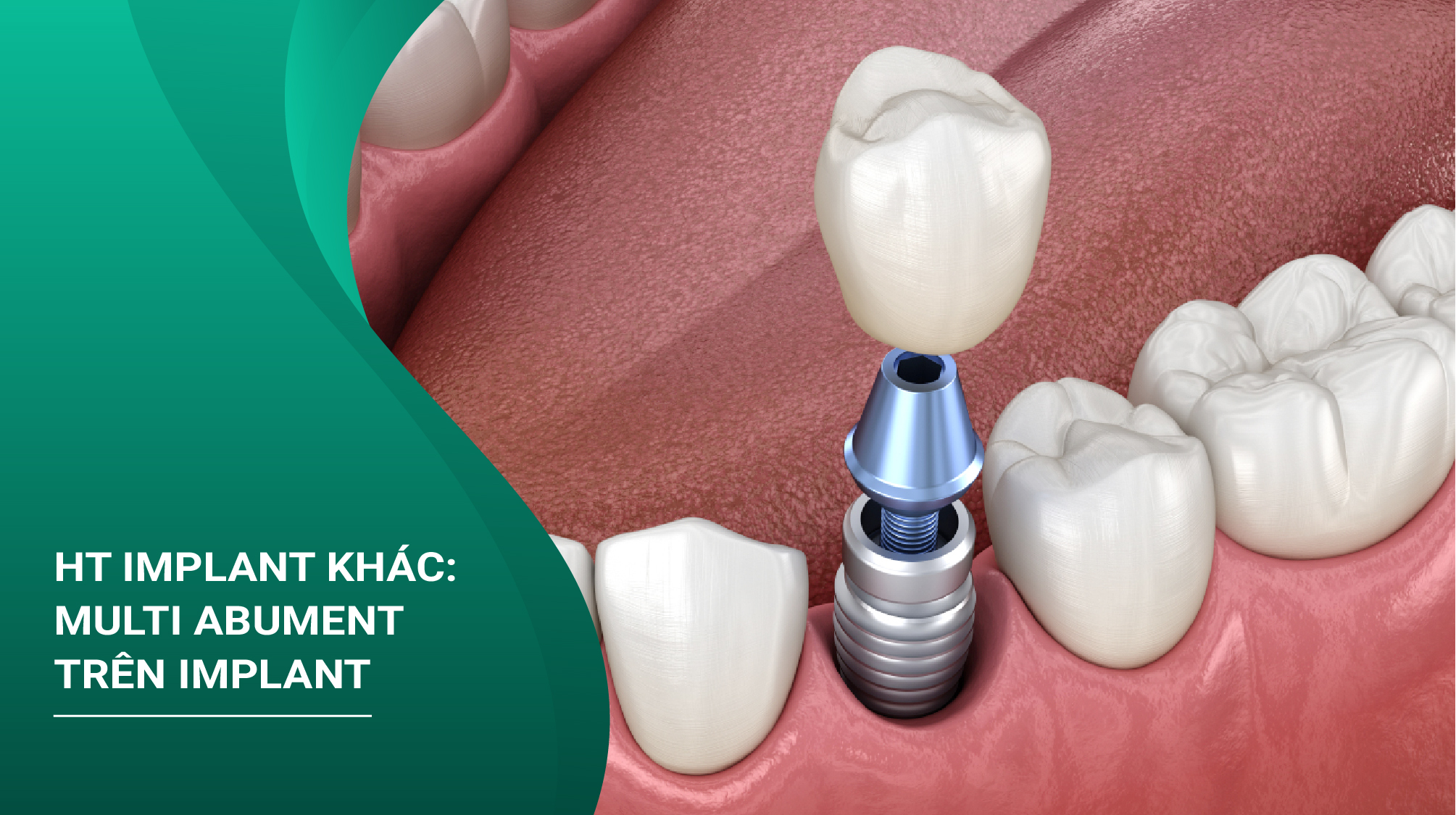 Ht Implant Khác: Multi Abument Trên Implant