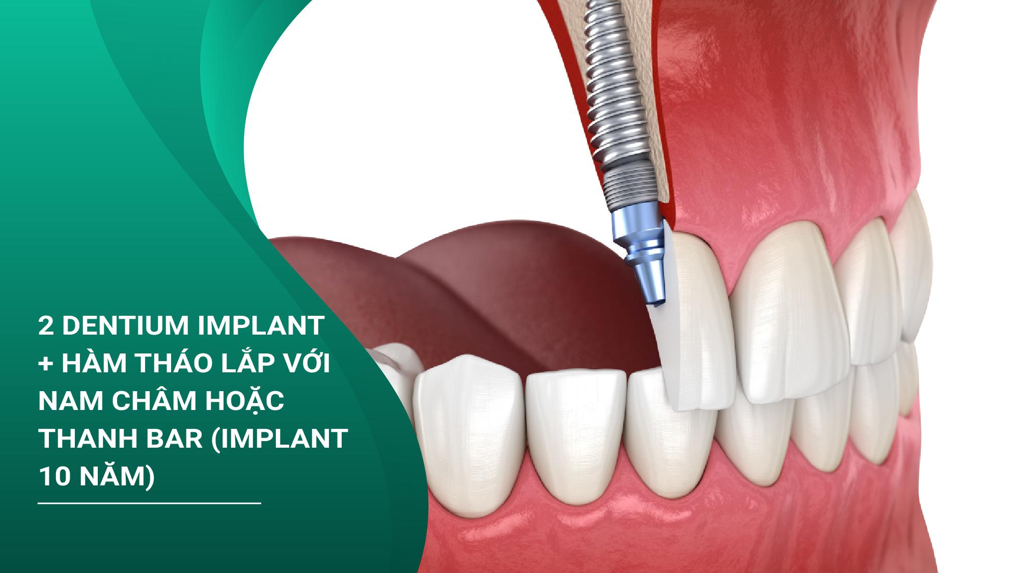 Trồng Răng Implant Dentium Kết Hợp Hàm Tháo Lắp Nam