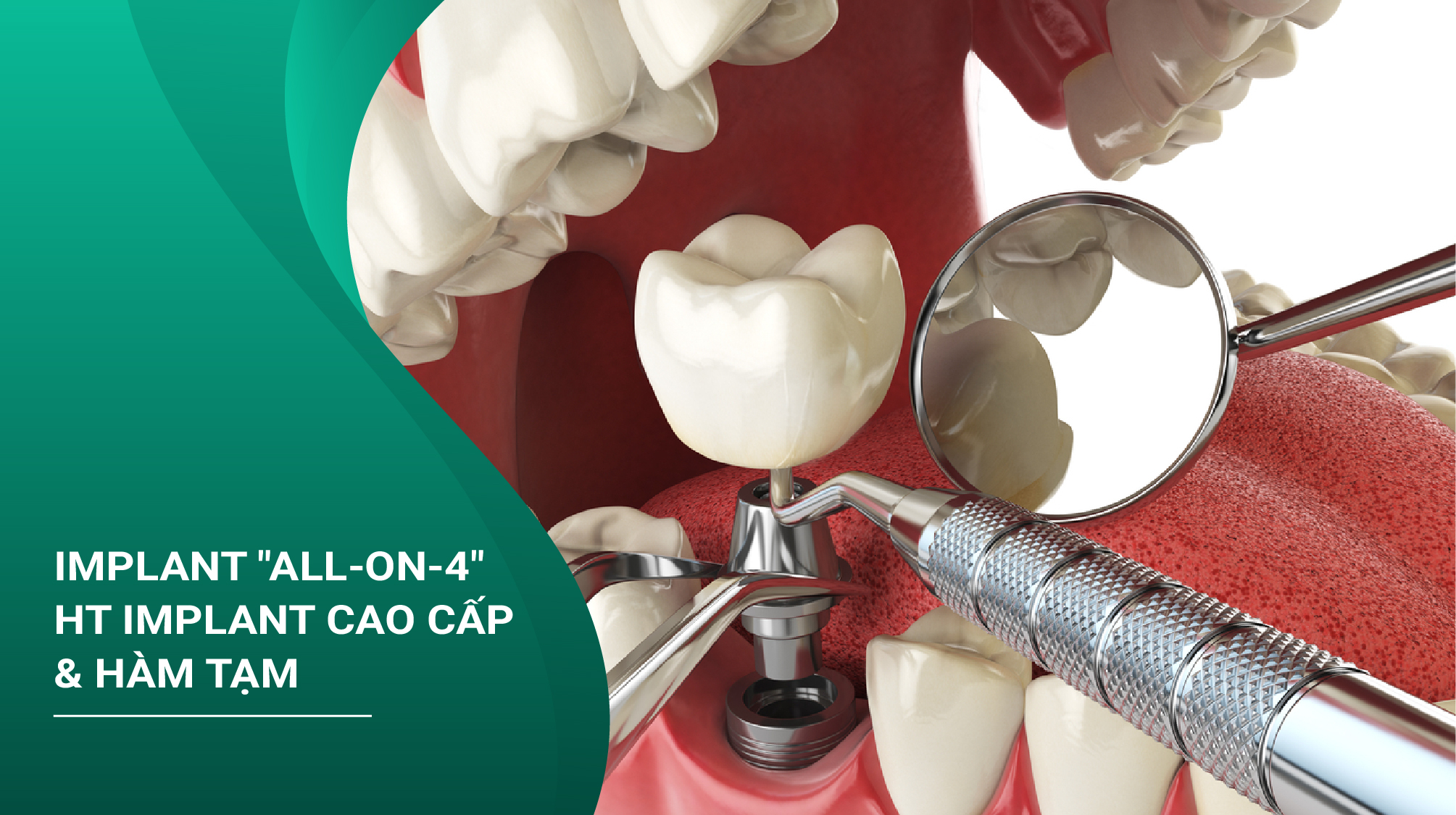 "Implant ""All-On-4"" Ht Implant Cao Cấp & Hàm Tạm"
