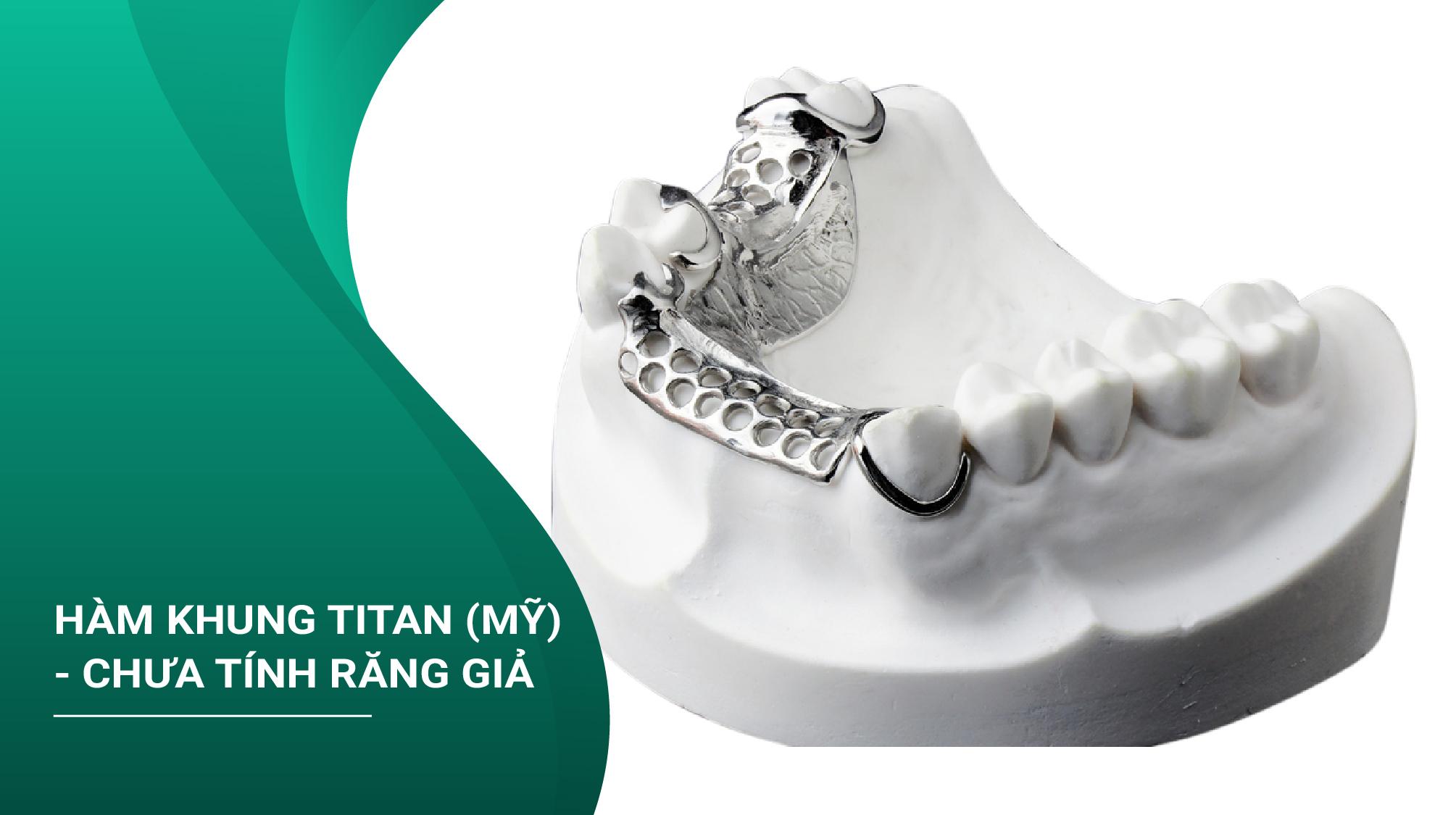 Hàm Khung Titan (Mỹ) Chưa Tính Răng Giả