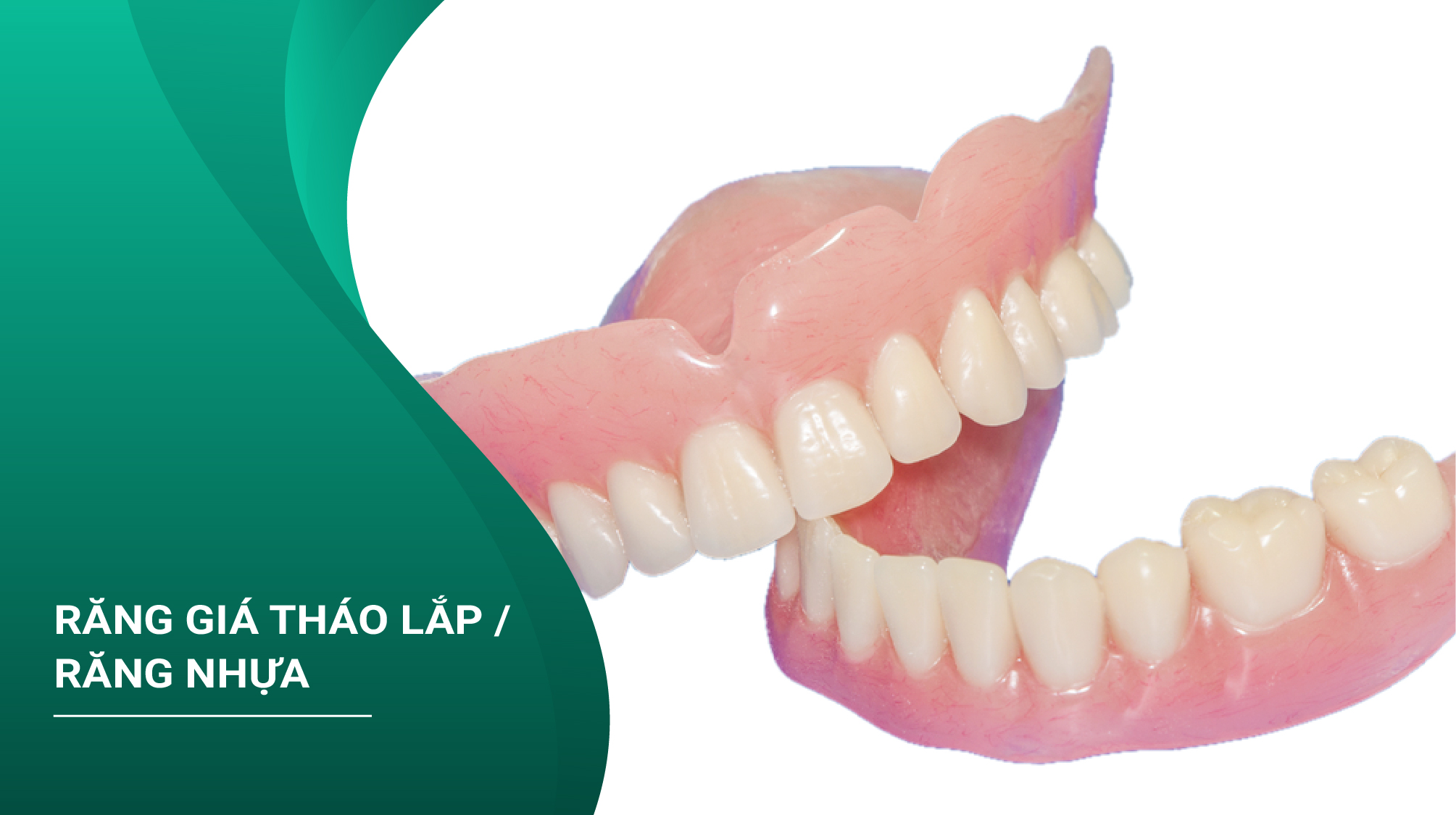 Răng Giả Tháo Lắp/ Răng Nhựa